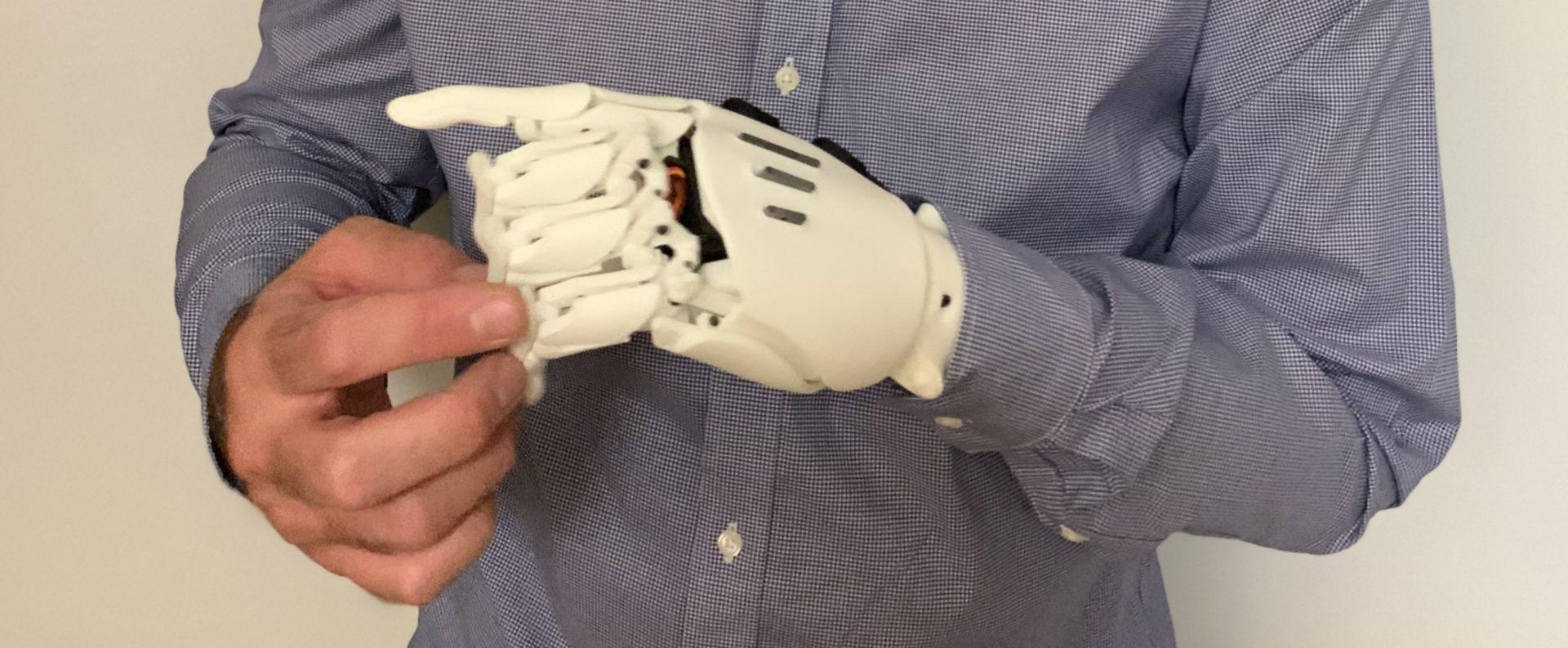 Prototipos de la Prótesis Biónica